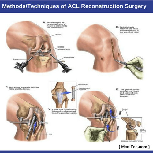methods techniques of acl reconstruction surgery