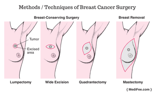 Biopsy methods for breasts