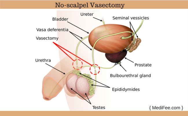 no scalpel vasectomy procedure