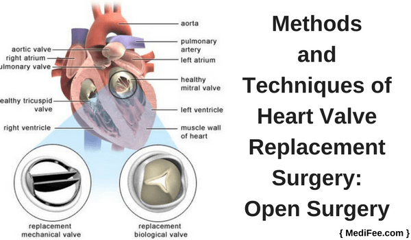 open heart valve replacement