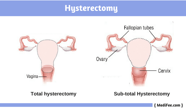 total and subtotal hysterectomy