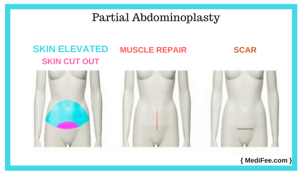 partial abdominoplasty tummy tuck surgery