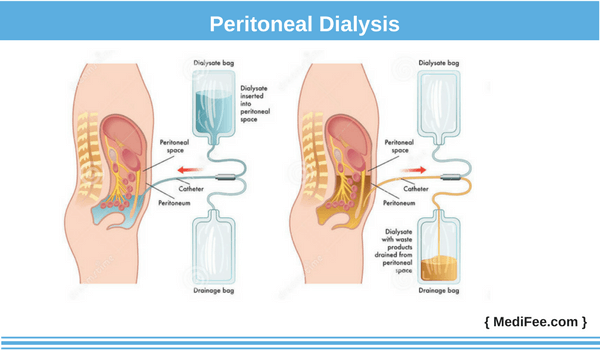 peritoneal method of dialysis
