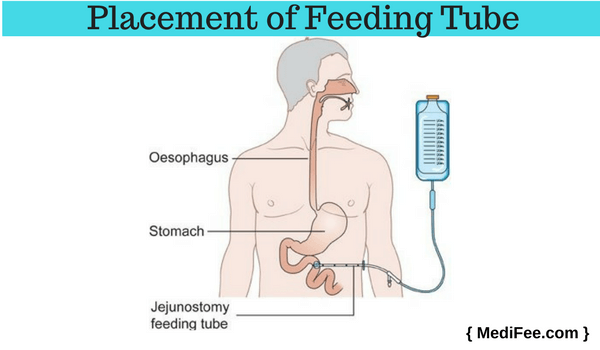 placement of feeding tube