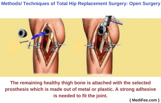 procedure of total hip replacement