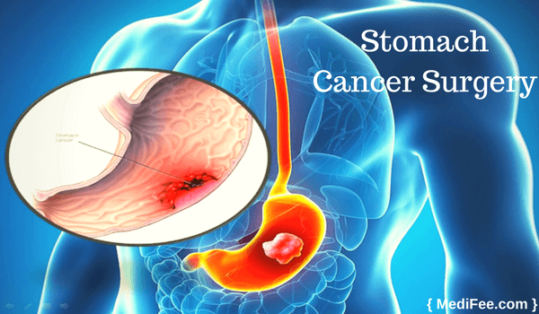 stomach cancer surgery