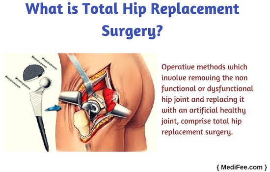 Hip Replacement Surgery >> Total Hip Replacement Surgery