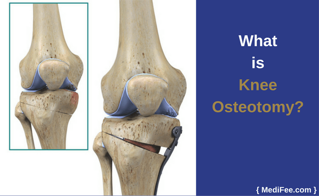 what is knee osteotomy