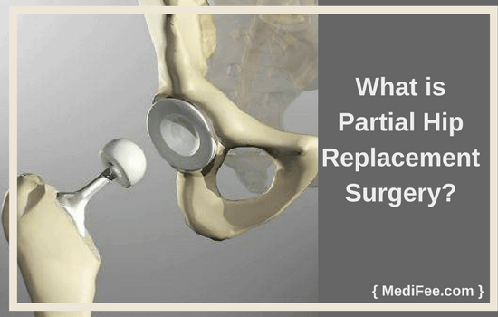 what is partial hip replacement surgery