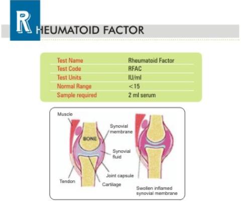 rheumatoid factor test procedure pdf