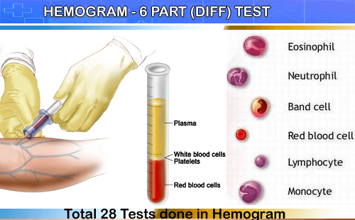 Hemogram Test from Thyrocare