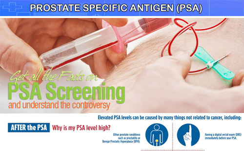 Prostate Specific Antigen Test from Thyrocare